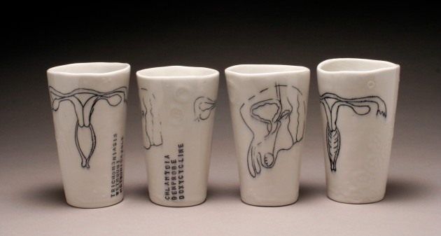 sexually transmitted dis......ease. porcelain, underglaze, glaze. 2013.